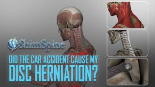 Did the Accident Cause the Disk Herniation?