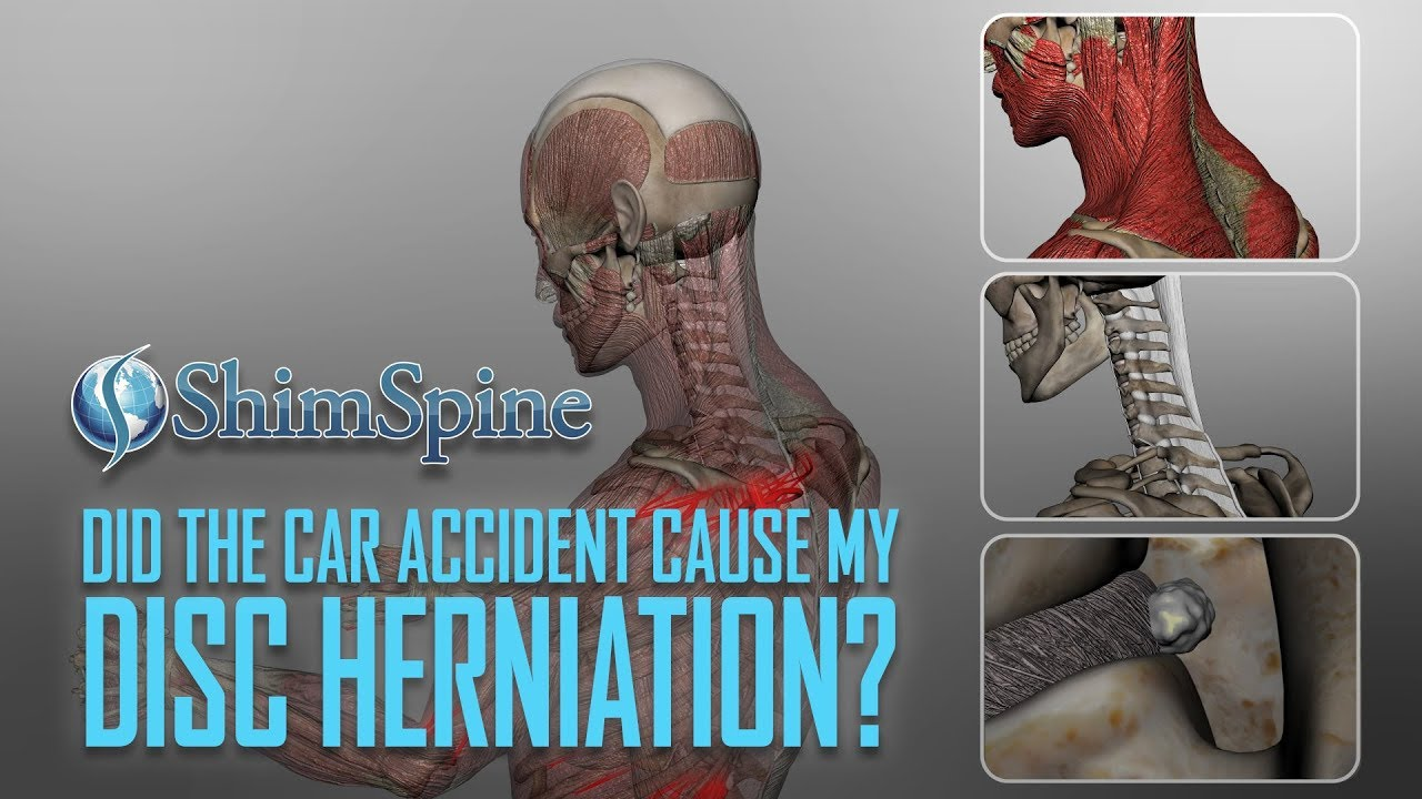 Did the Accident Cause the Disk Herniation? - ShimSpine