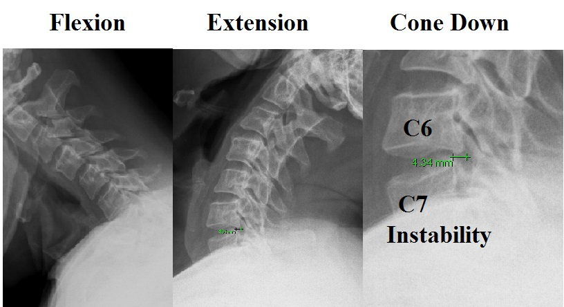 Spinal Stabilization Surgery >> Cervical Instability - Shim Spine