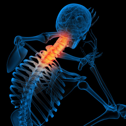 What is myelopathy?