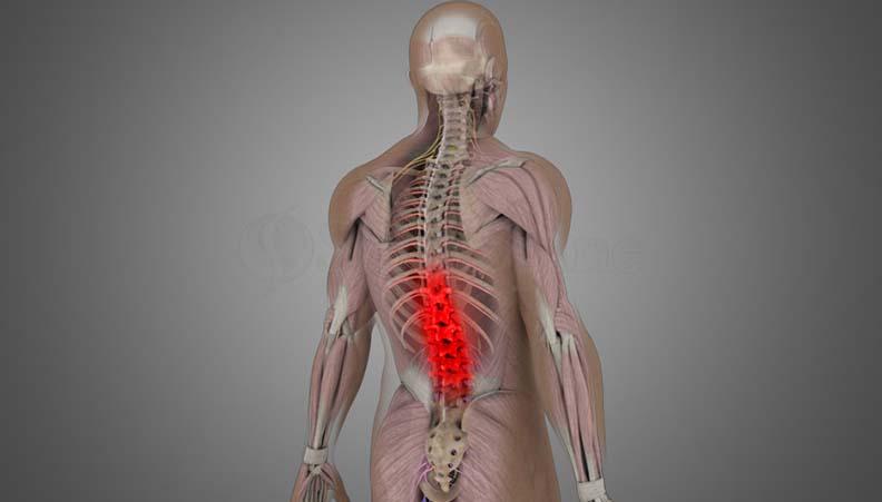 Mechanical Back Pain