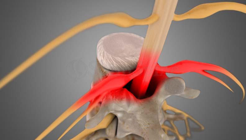 Lumbar Stenosis