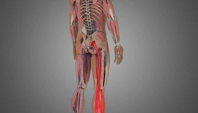 Lumbar Radiculopathy (Sciatica)
