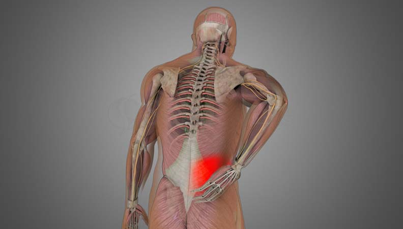 Low back Sprain-Strain