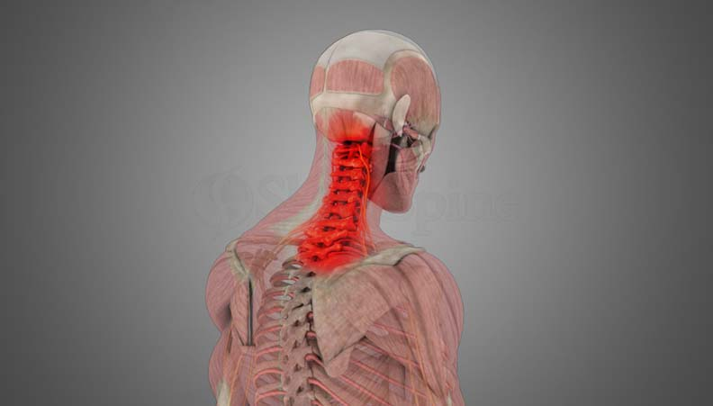 Cervical Sprain-Strain (Whiplash)