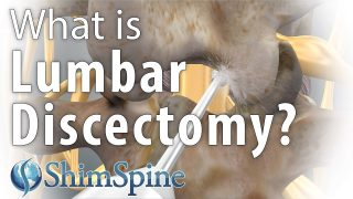 Why Lumbar Discectomy?