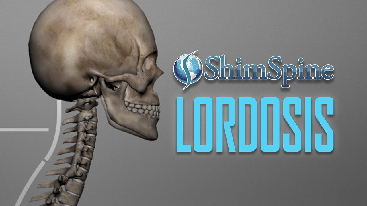 A Loss of Lordosis