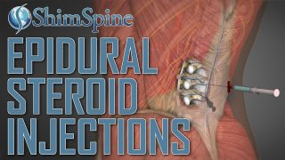 Epidural Steroid Injections ; Do They Work?