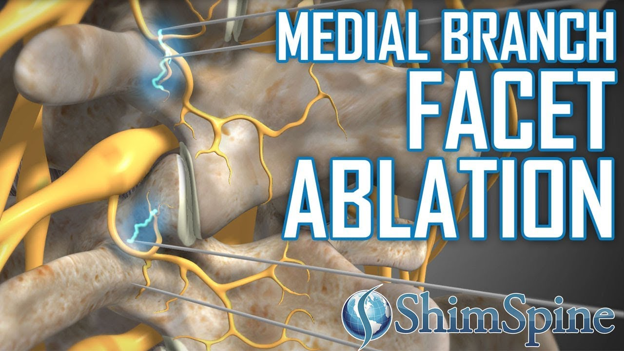 Medial Branch Facet Injections and Radiofrequency Ablation – Another Option for Pain Control