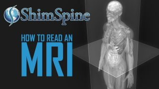 I rarely see a normal spine MRI