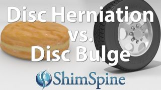 Disc Herniation Vs. Disc Bulge
