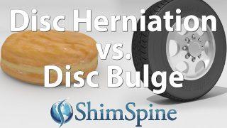 Disc Herniation Vs. Disc Bulge