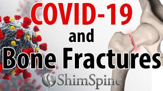 COVID-19 and Bone Fractures