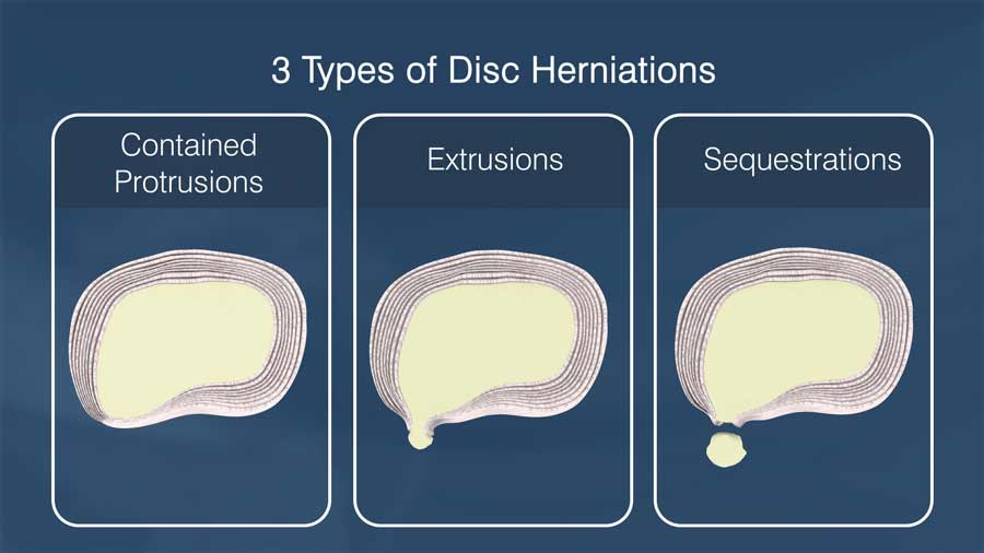 Three types of disc herniations