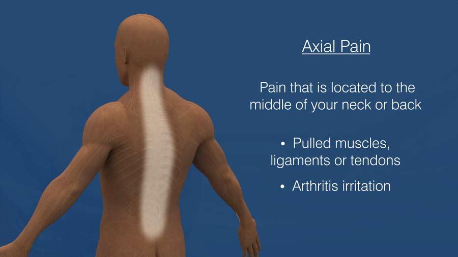 Axial Pain