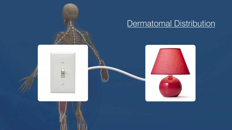 dermatomal distribution