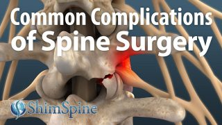 Common Complications of Spine Surgery