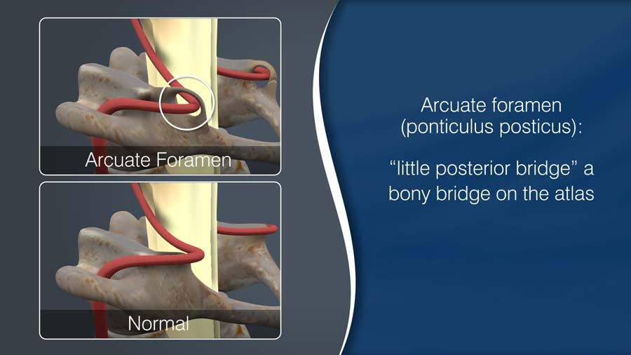 arcuate foramen