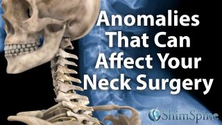 Anomalies That Can Affect Your Neck Surgery
