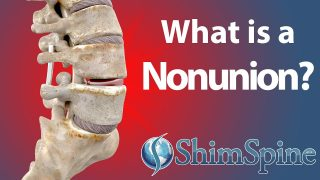 What is a Nonunion?