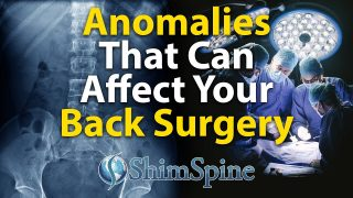 Anomalies That Can Affect Your Back Surgery