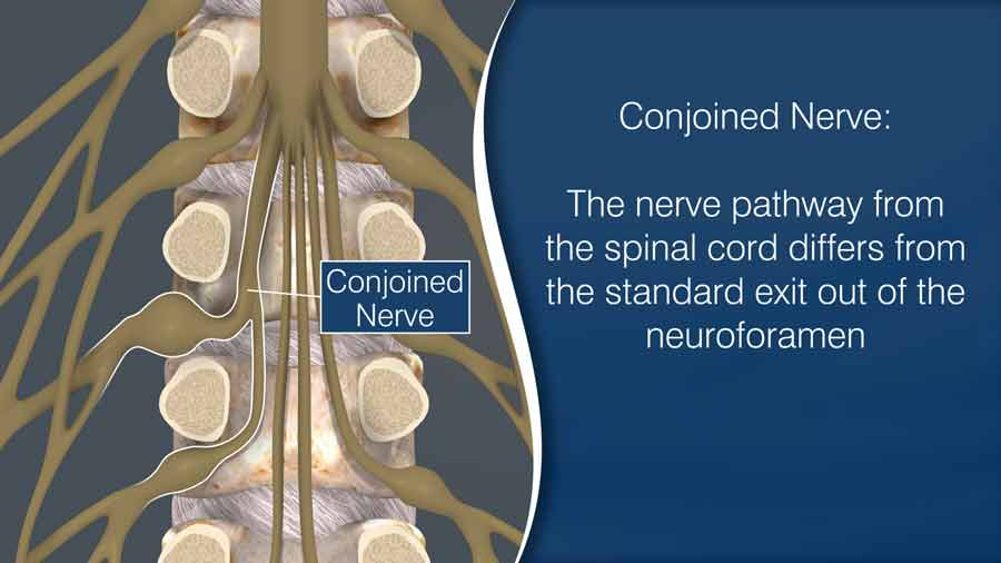 Conjoined nerve