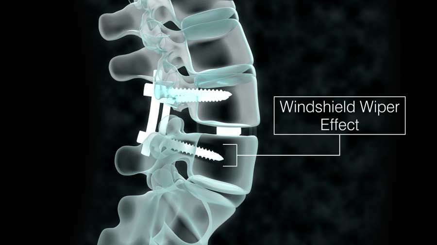 windshield wiper effect