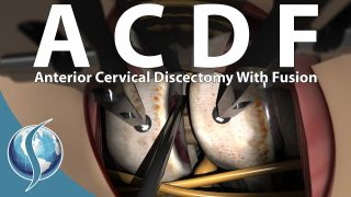 Anterior Cervical Discectomy and Fusion