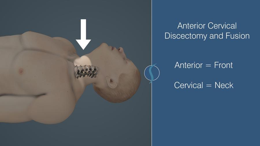 Anterior Cervical