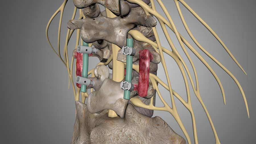 stabilization of the spine