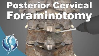 Posterior Cervical Foraminotomy
