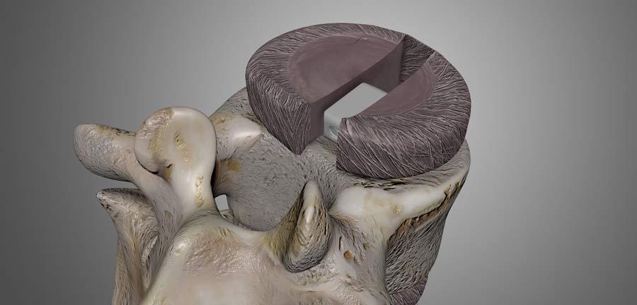 laminectomy procedure
