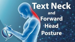 Text Neck and Forward Head Posture