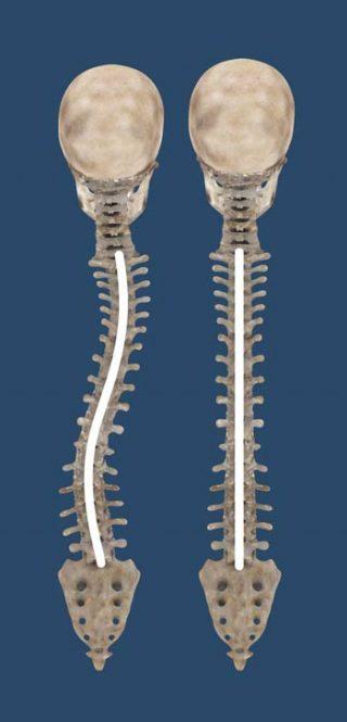 Spine Curve