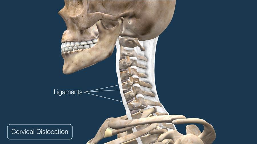 Cervical Dislocation
