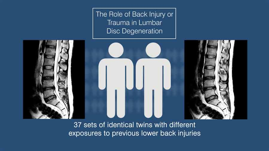 The role of back injury or trauma in lumbar disc degeneration