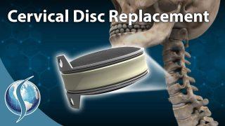 Artificial Cervical Disc Replacement