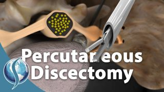 Is Percutaneous Discectomy Better Than Traditional Discectomy?