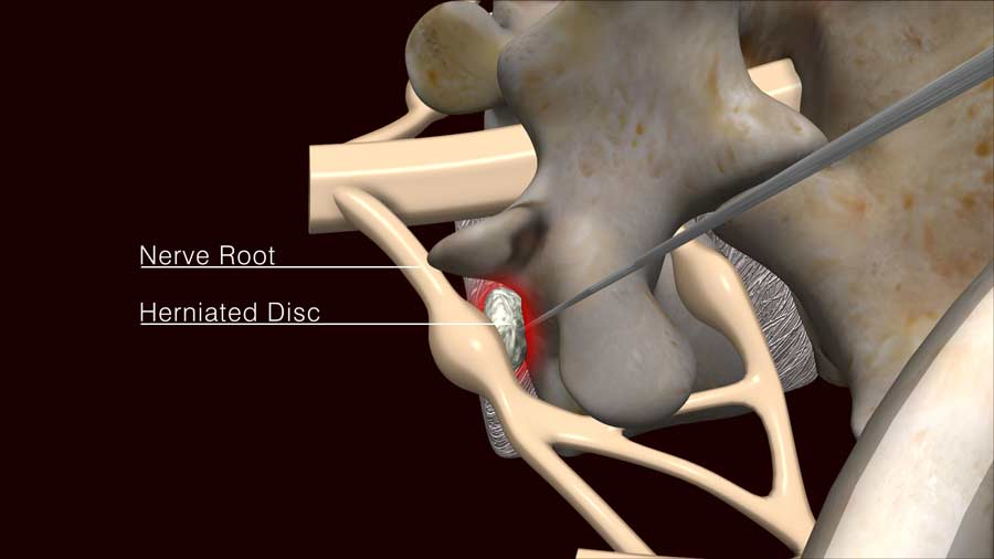removal of the herniated disc material